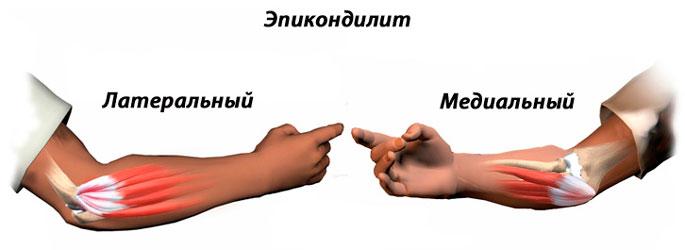 Тендинит плечевого сустава: симптомы и лечение тендинита сухожилий надостной, двуглавой мышцы плеча в Москве || Тендовагинит сухожилия длинной головки бицепса лечение