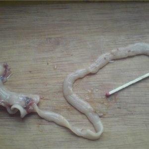 Фото паразитов живущих в кишечнике человека