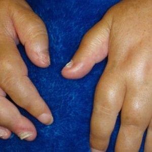 Псориатический артрит: диагностика и лечение