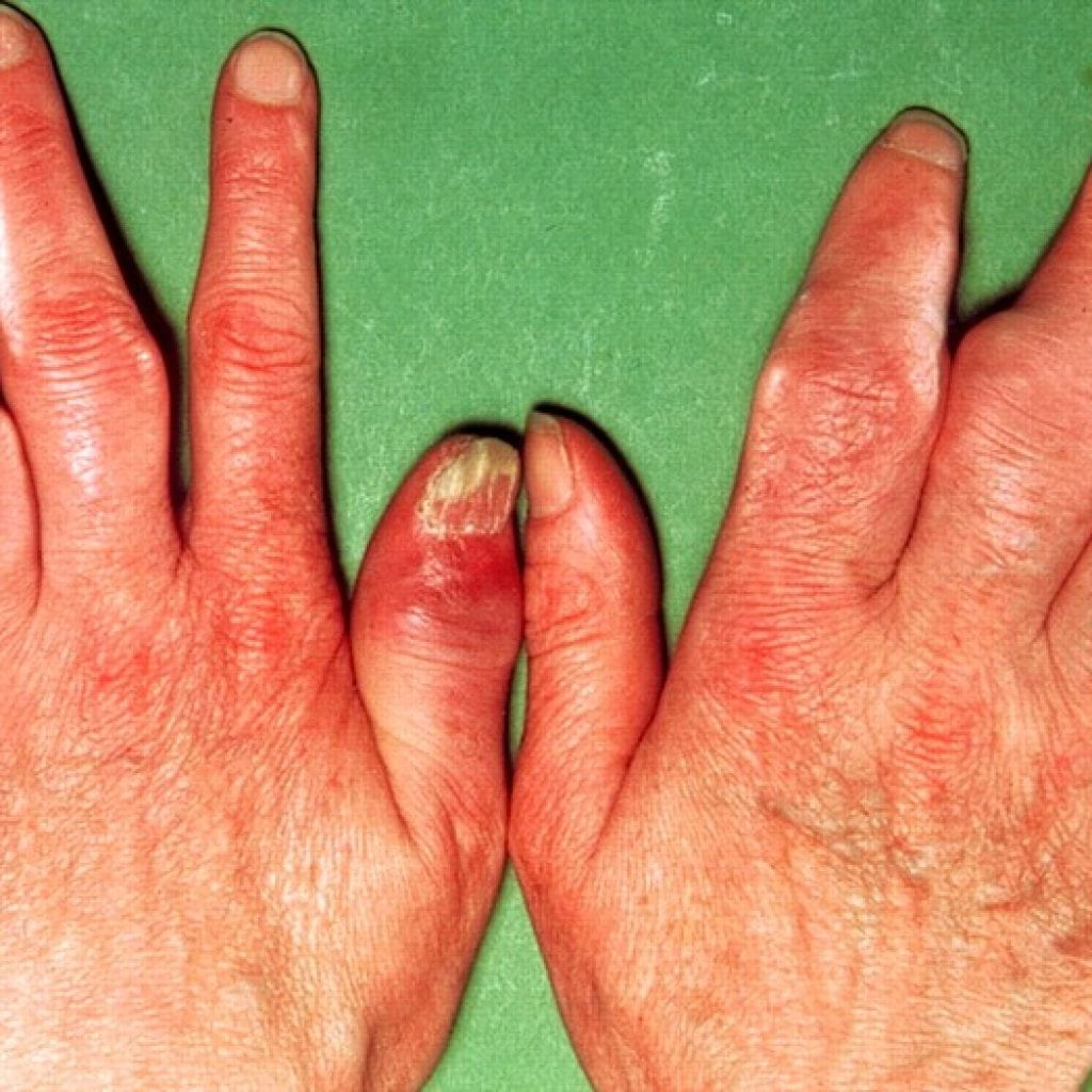 Псориатический артрит лечение и прогноз фото