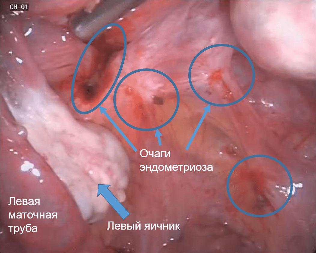 Чем опасен эндометриоз матки, что будет если не лечить болезнь