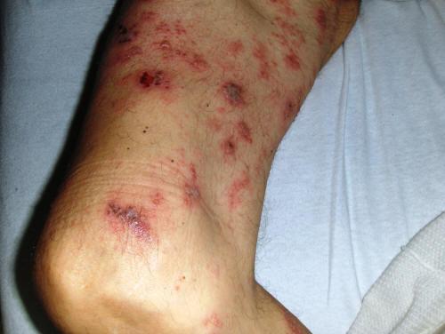Миеломная болезнь - Виды рака - Онкология