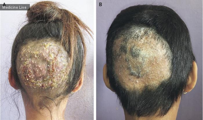 Начальная стадия лишая - как выглядит стригущий лишай. Лечение и описание болезни (125 фото )