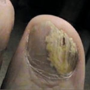 Руки без ногтей фото 102
