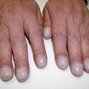 Болезни ногтей на ногах: из-за чего могут возникнуть грибковые и другие заболевания ногтей ног