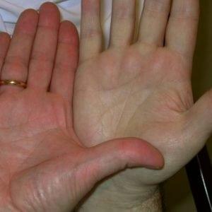 Анемия причины диагностика лечение