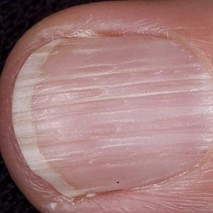 Руки без ногтей фото 107