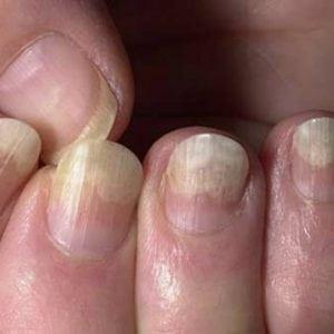 Руки без ногтей фото 128