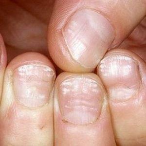 Руки без ногтей фото 109