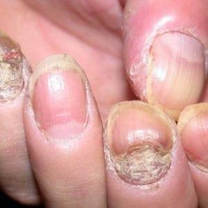 Руки без ногтей фото 112