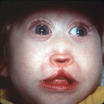 Синдром патау генетика