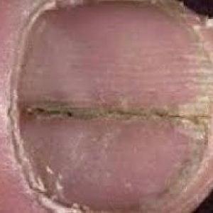 Руки без ногтей фото 118