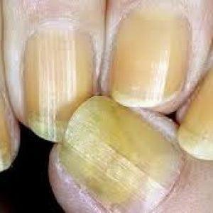 Руки без ногтей фото 98