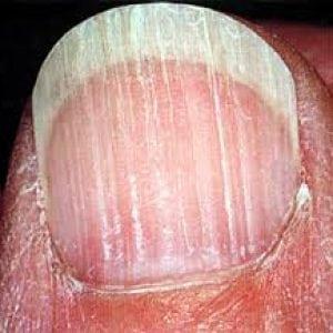 Руки без ногтей фото 108