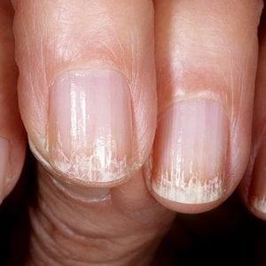 Руки без ногтей фото 126