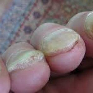 Почему болят ногти на руках и ногах: что делать?