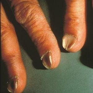 Руки без ногтей фото 122