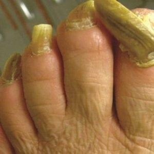 Руки без ногтей фото 99