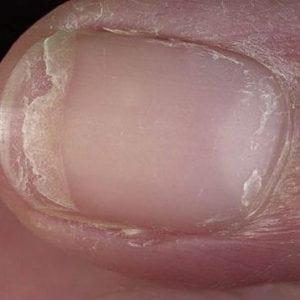 Руки без ногтей фото 125