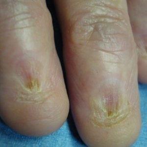 Руки без ногтей фото 119