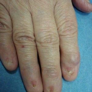 Руки без ногтей фото 120