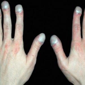 Руки без ногтей фото 96