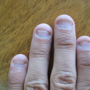 Руки без ногтей фото 123