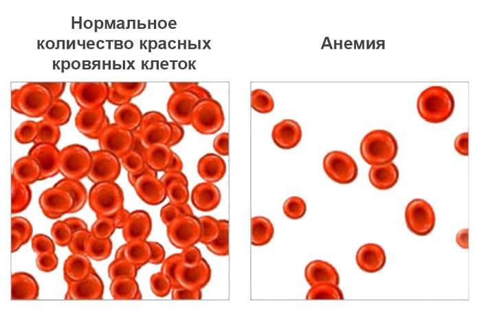Особенности анемии 1 степени и ее лечение