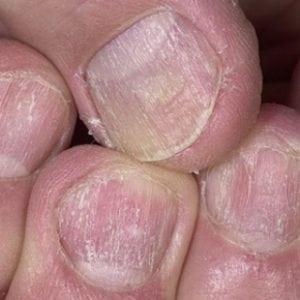 Руки без ногтей фото 130