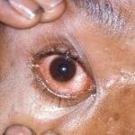 Гонорея глаз симптомы