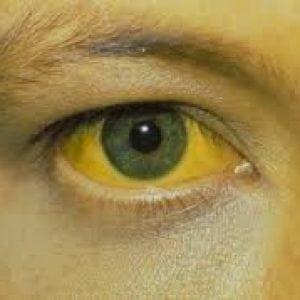 Гепатит Б. Симптомы у женщин, мужчин, что это такое, лечится или нет, как передается, сколько живут, как избежать, прививка
