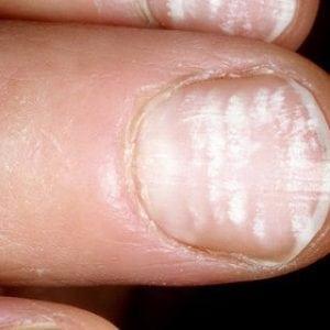 Руки без ногтей фото 110