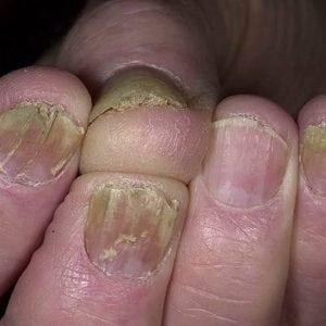 Руки без ногтей фото 132
