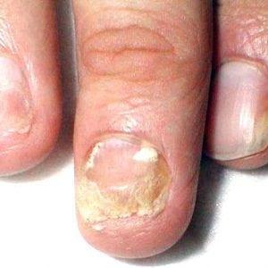 Руки без ногтей фото 127