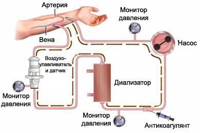 Как делают гемодиализ почек