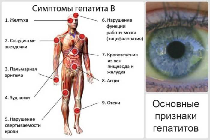 Симптомы гепатита С: первые признаки болезни