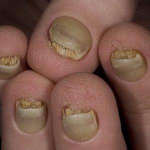 Руки без ногтей фото 131