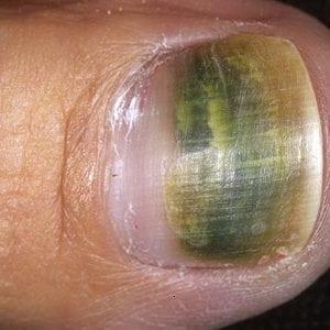 Руки без ногтей фото 101