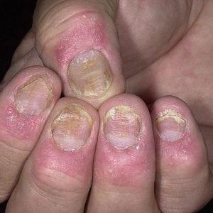 Руки без ногтей фото 111