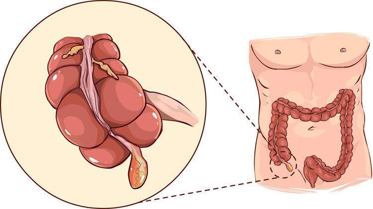 Где находится аппендикс у человека (фото) и как болит при аппендиците