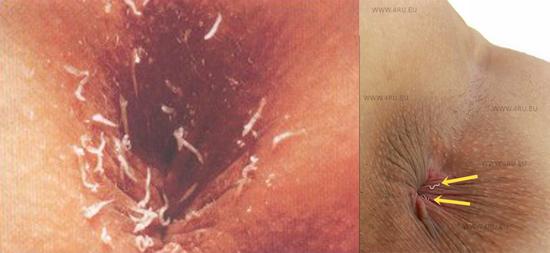 Как выглядят острицы у человека фото