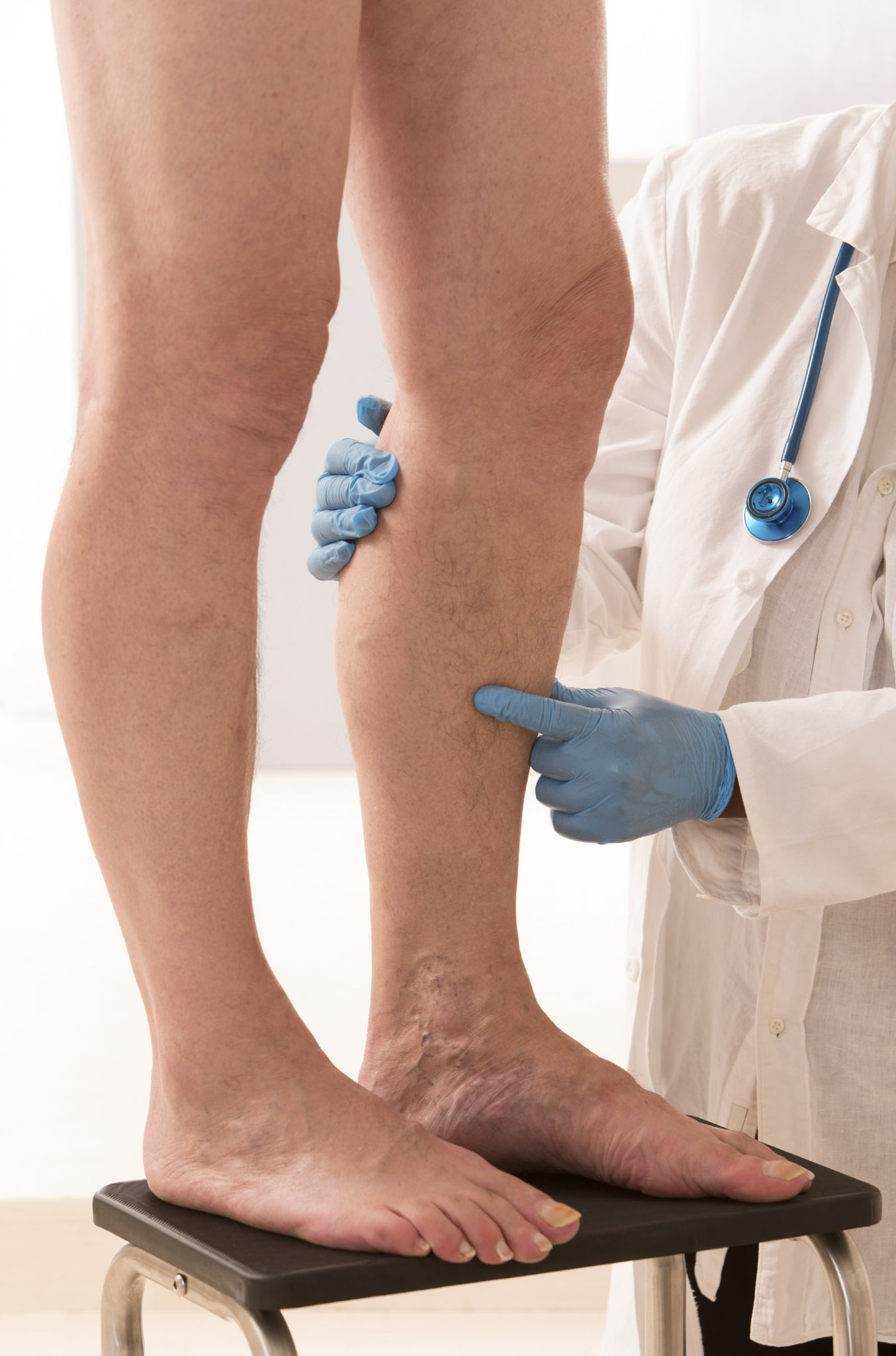 Лечение вен на ногах: методы и способы лечения заболеваний вен нижних конечностей
