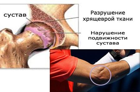 Медиальный эпикондилит. Симптомы и лечение