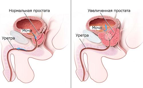 Что такое аденома предстательной железы у мужчин
