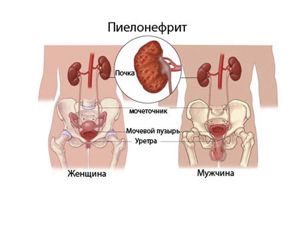 Пиелонефрит острый: причины, симптомы и лечение в статье уролога Закуцкий А. Н.