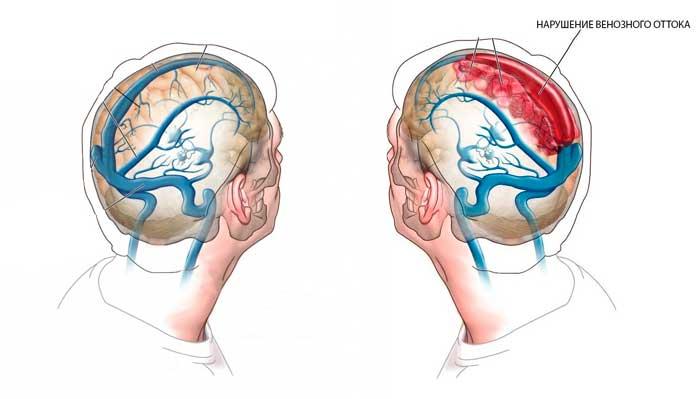 Венозная недостаточность головного мозга симптомы лечение