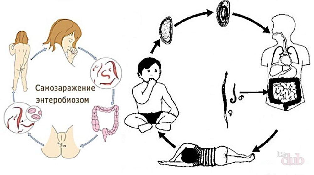 Энтеробиоз у детей - симптомы болезни, профилактика и лечение Энтеробиоза у детей, причины заболевания и его диагностика на EUROLAB