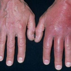 Лечение золотистого стафилококка на коже 44