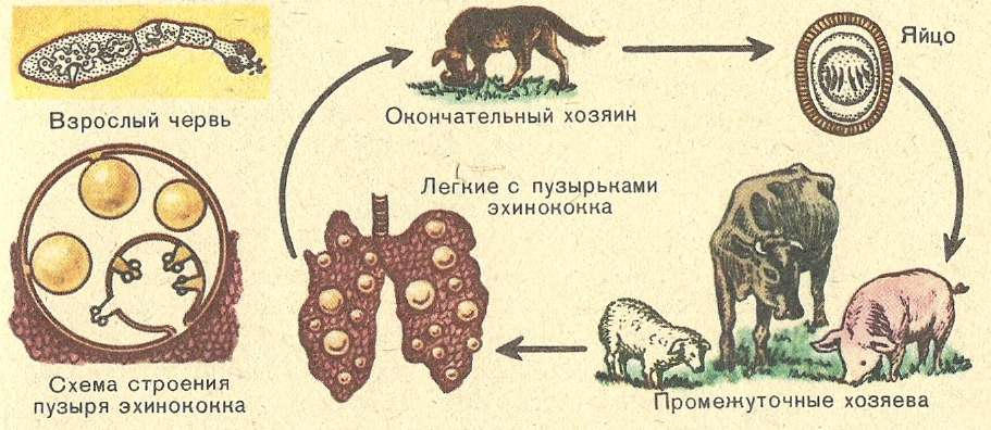 Эхинококковый пузырь головного мозга