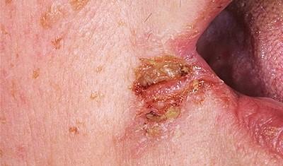 Заеды в уголках рта: причины появления, виды и лечение